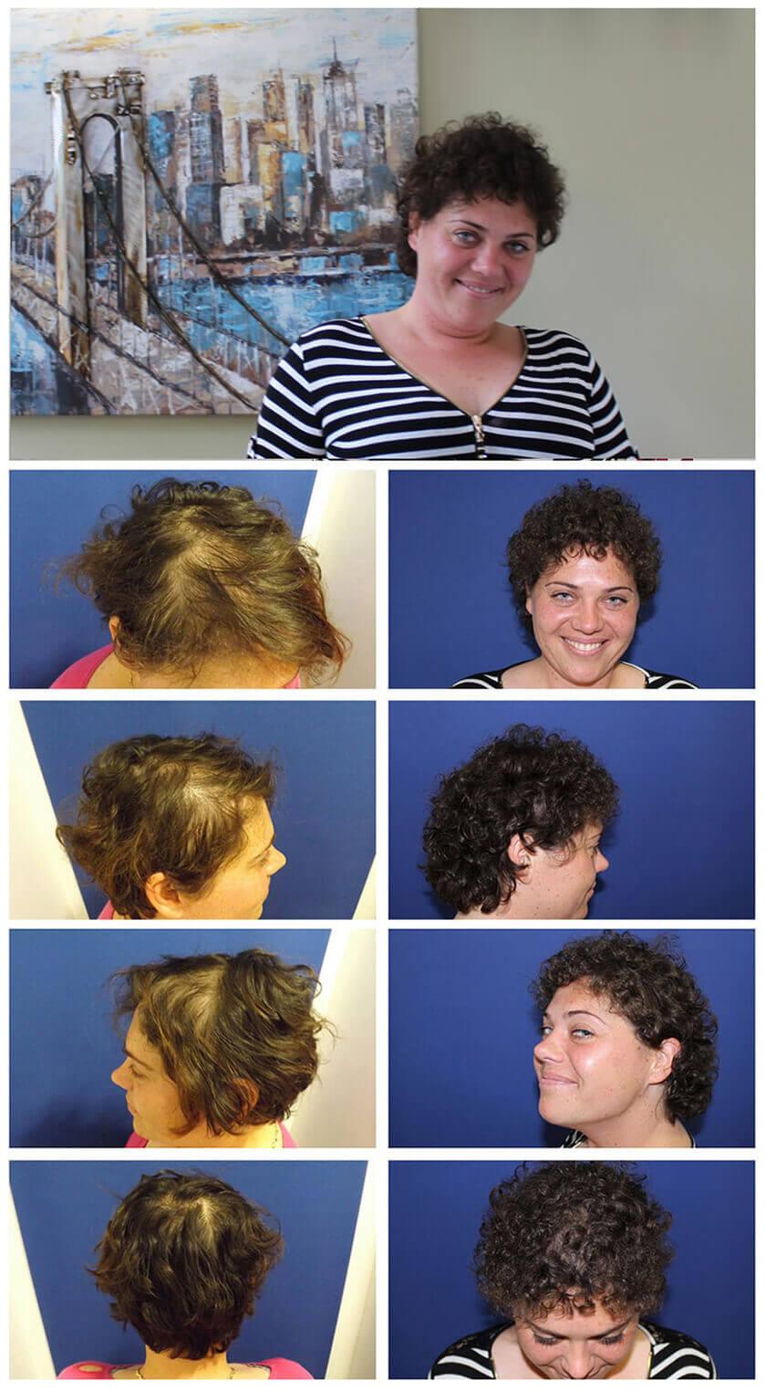 Man kann das Vitamin в6 in die Wurzeln des Haares einmassieren