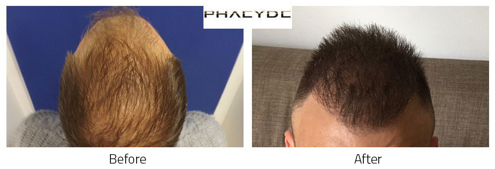 Hair Transplant Charles Cs. 5000 Hairs