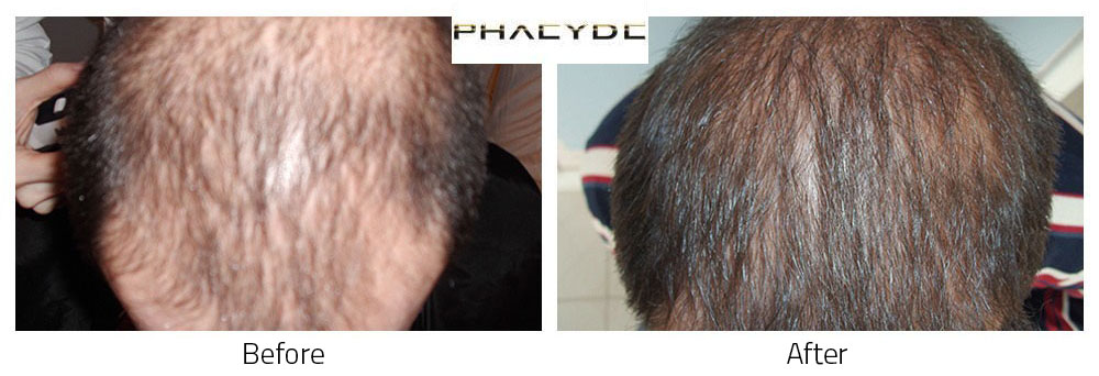 Hair Transplant Laslie D. 8000+ Hairs