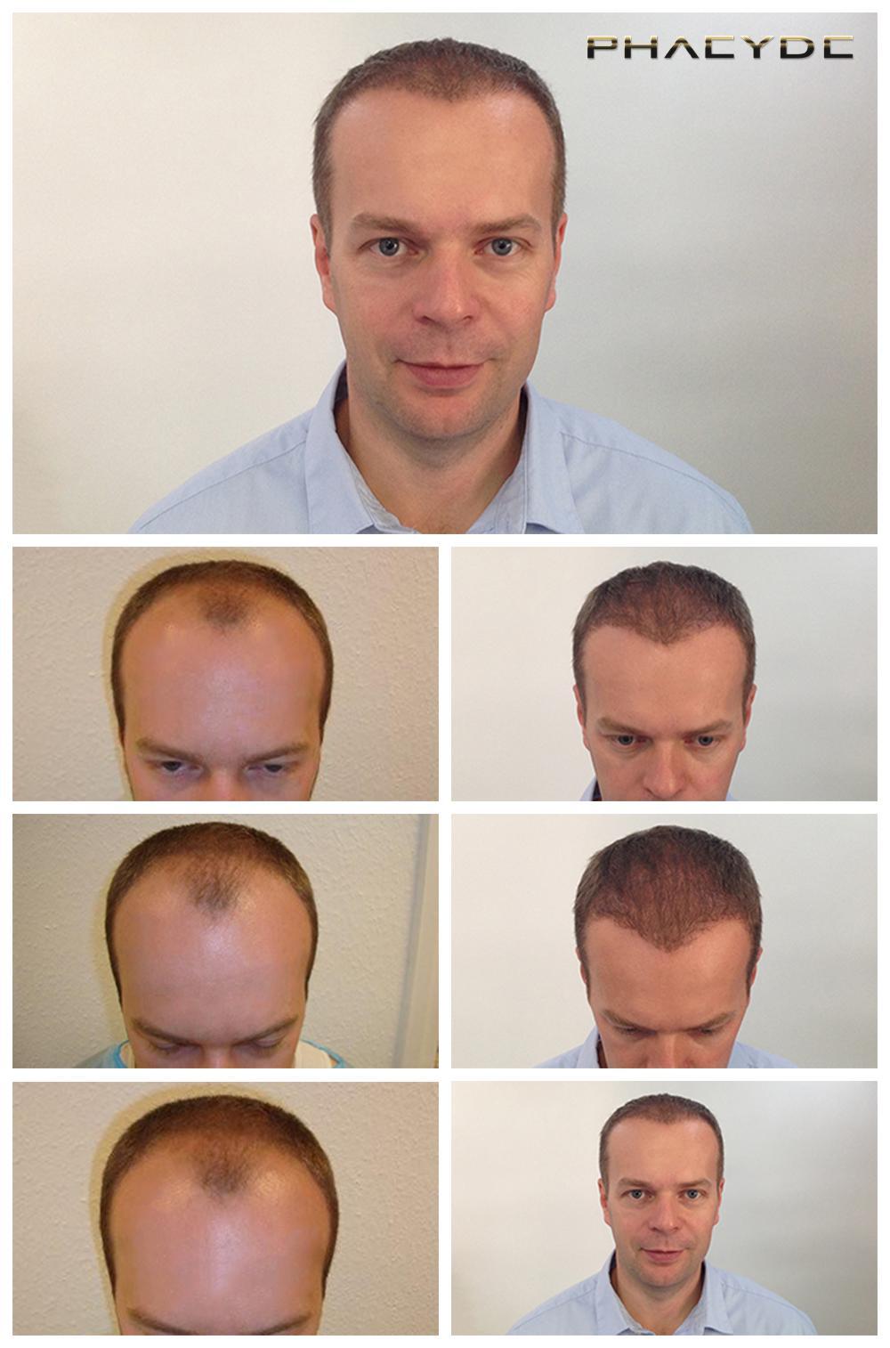 haartransplantation und haarpigmentierung bevor nachher fotos